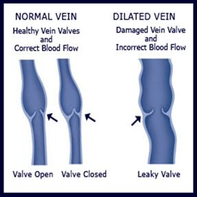 Normal Vein vs. Dilated Vein