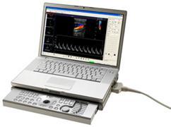 Terason ultrasound